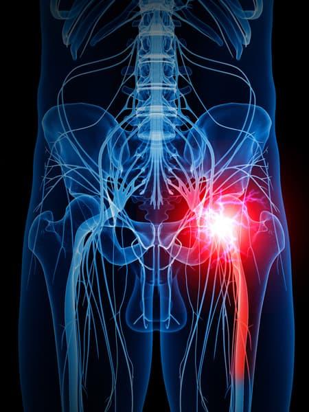 Sciatic pain chiropractor